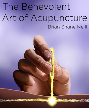 Acupuncture Dublin